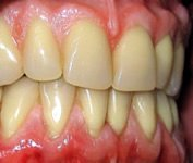 Eine Parodontose und schreitet langsam in Intervallen voran.