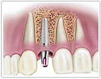 Heute werden Implantate auch eingesetzt, wenn eine Parodontitis vorliegt.
