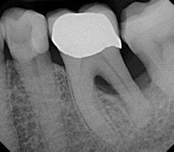 Bei der Parodontitis geht das Zahnfleisch langsam zurück. Auch der Kieferknochen kann im Verlauf betroffen sein.