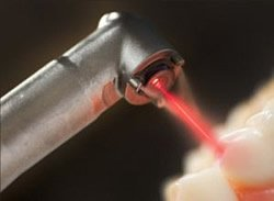 Der Laser kommt immer häufiger bei der Parodontalbehandlung zum Einsatz.