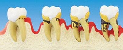 Eine Parodontose entsteht durch aggressive Bakterien