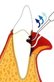 Eine offene Parodontitisbehandlung mit Aufklappung des Zahnfleischs