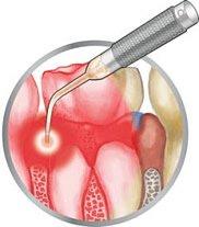 Ein Infiltrat äußert sich bevorzugt in einer leichten Schwellung des Zahnfleisches.