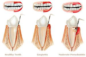 Zahnfleischbehandlung in schematischer Darstellung