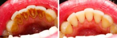Regelmäßige Besuche beim Zahnarzt mit Prophylaxebehandlungen und gründliche Mundhygiene verhindern das Entstehen von Zahnbelägen.