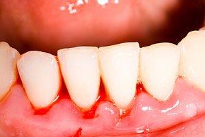 Zahnfleischbluten durch Zahnfleischentzündung