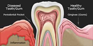 Zahnfleischentzündung verursacht Knochenabbau