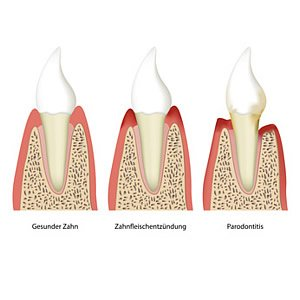 Parodontose - Knochenabbau