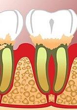 Knochenabbau und Zahnfleischrückgang
