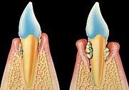 Freiliegende Zahnhälse können mit eigenem Gewebe behandelt werden.