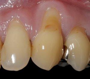 Zahnfleischrückgang am Eckzahn