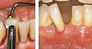 Zahnlockerung kann im Rahmen einer Parodontitis durch eine unbehandelte, voranschreitende Zahnfleischentzündung entstehen.