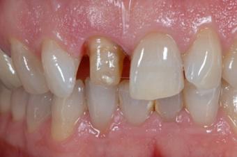 Präparierter Zahn für eine Keramikkrone