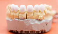 Primärkappen für Zahnkronen