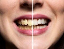 Zahnaufhellung durch Bleaching