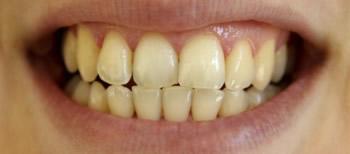 Gelbe Zähne bekommt der Zahnarzt weiß