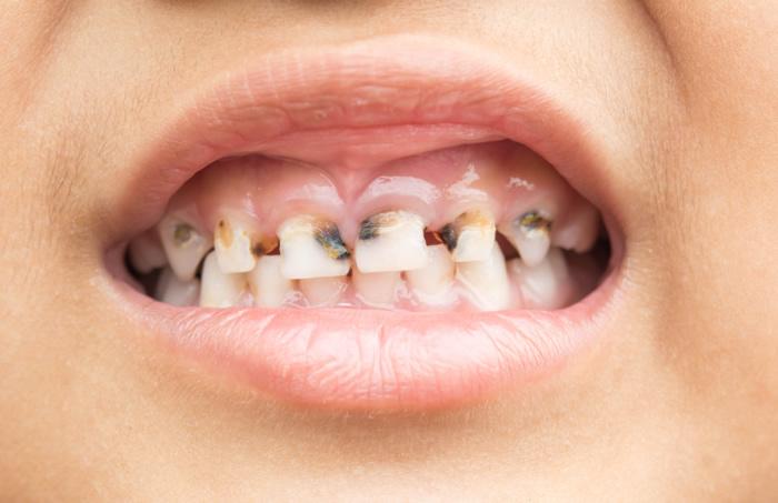 Schwarze Zähne durch Karies beim Kind