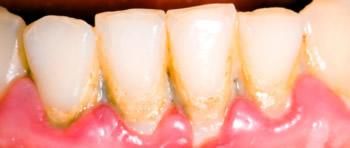 Zahnbelag an den Frontzähnen