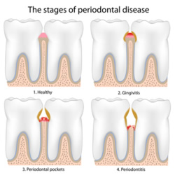 Ber schwerwiegenden Pardodontitiserkrankungen kann eine Parodontaloperation, als letztes Mittel der Wah,l den Zahn stabilisieren.