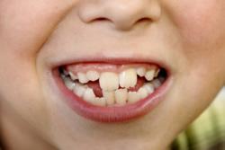 Unter anderem können schiefe Zähne zu einer Störung des Sprechens führen, aber auch andere organische, psychologische oder neurologische Ursachen können vorhanden sein.