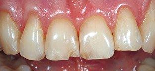 Bei unschönen Schäden an den Zähnen durch Karies können Kronen die Ästhetik und Zahnfunktion wieder zurückbringen.