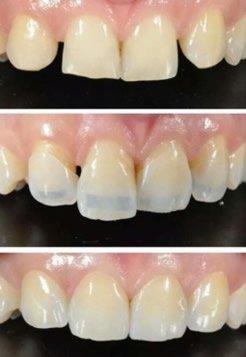 Lumineers können auch bei der Korrektur einer Zahnfehlstellung der Frontzähne genutzt werden
