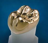 Goldkronen sind an sich stabiler, aber dafür wirken sie unnatürlicher und leiten Wärme und Kälte zum Nerv weiter.