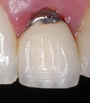 Kronen mit einem Unternau aus Metall schimmern am Zahnfleischrand immer dunkel, womit sie als Zahnersatz zu erkennen sind. Bei der Vollkeramikkrone ist das nicht der Fall.