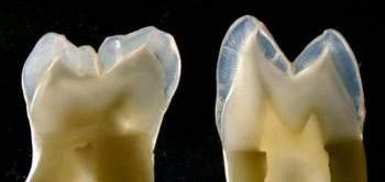 Wenn tiefe Karies einen Zahn stark angegriffen hat, kann eine Vollkeramikkrone eine stabile und ästhetische Lösung zum Zahnersatz sein.