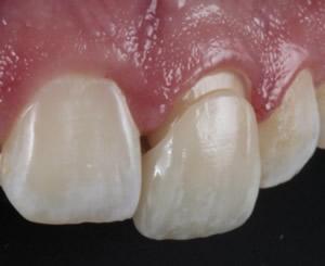 Die Vollkeramikrone wird im letzten Schritt adhäsiv auf Stiftaufbau oder den angeschliffenen Zahn aufgeklebt, sodass sich die Materialien verbinden.