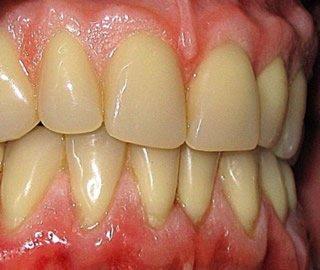 Für eine ansprechende Zahnästhetik können Behandlungen am Zahnfleisch notwendig sein. Transplantationen von Mundschleimhaut helfen.