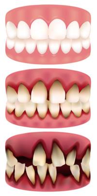 Parodontose verursacht einen Schwund des Zahnfleischs und letztendlich Zahnverlust