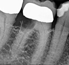 Sekundärkaries an Zahnkrone treten oft nach vielen Jahren schlechter Zahnpflege auf.