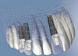 Die Versorgung mit Zahnimplantaten ist heute immer öfter das bevorzugte Verfahren bei Zahnverlust.