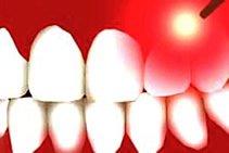 Minimalinvasive Verfahren der Zahnbehandlungm, beispielsweise mit einem Laser, bieten Ihnen eine schmerzfreie Behandlung.
