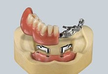 Stegprothese auf Implantate