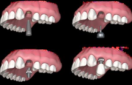 Einzelzahnimplantate haben den Vorteil, dass sie fest sitzen und die angrenzenden Zähne nicht durch Beschleifen beschädigt werden müssen.