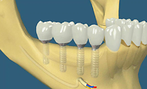 Wie ie Freiendbrücke genau auf Implantate gesetzt werden kann, liegt an dem Knochenangebot im Kiefer.