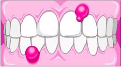 Abzesse am Zahnfleisch sind meistens nicht schmerzhaft, aber ebenfalls dringend behandlungsbedürfnig.
