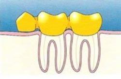 Anhängerbrücke beim Zahnarzt