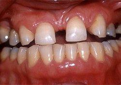Bei einer Aplasie bricht ein angelegter Zahn nicht durch, wodurch eine Zahnlücke entsteht.