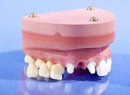 Brückenpfeiler nach komplettem Zahnverlust