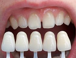 Als Diastema wird die vorkommende Zahnlücke zwischen den Frontzähnen bezeichnet.
