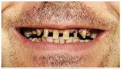 faule Zähne