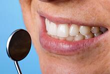 Zahnfleisch (Gingiva)