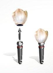Welche Kosten auf Sie zukommen beim Einsetzen von Titanimplantaten, hängt unter anderem davon ab, wie zeitaufwändig die Behandlung ist und welches Material für den Zahnersatz verwendet wird. Die Krankenkasse zahl nur den Festzuschuss für Zahnersatz.