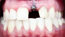 Als Teil der Versorgung mit Zahnersatz auf Basis von Implantaten wird bei der Implantatfreilegung mit einem kleinen, chirugischen Eingriff nach der Implantation gewachsenes Gewebe geöffnet.