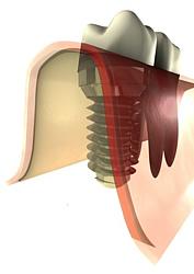 Im Durchschnitt kann die Ausheilung des Implantats zwischen 2 und 4 Wochen dauern. Erst danach kann die Oberkonstruktion aufgebracht werden.