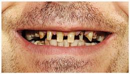 kaputte Zähne schmerzfrei vom Zahnarzt behandeln lassen