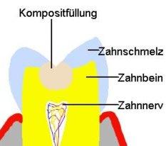 Komposit & Zahn in schematischer Darstellung
